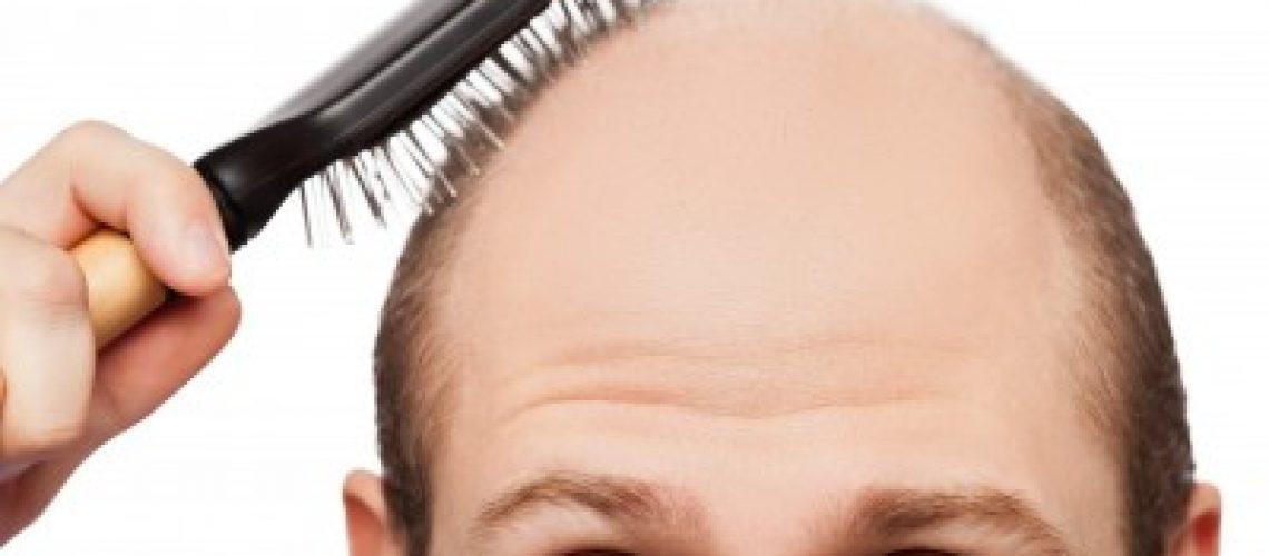 האם קיים טיפול להצמחת שיער?